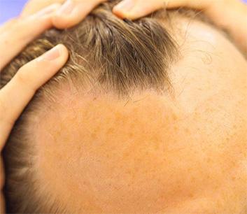 Alopecia Androgenetica